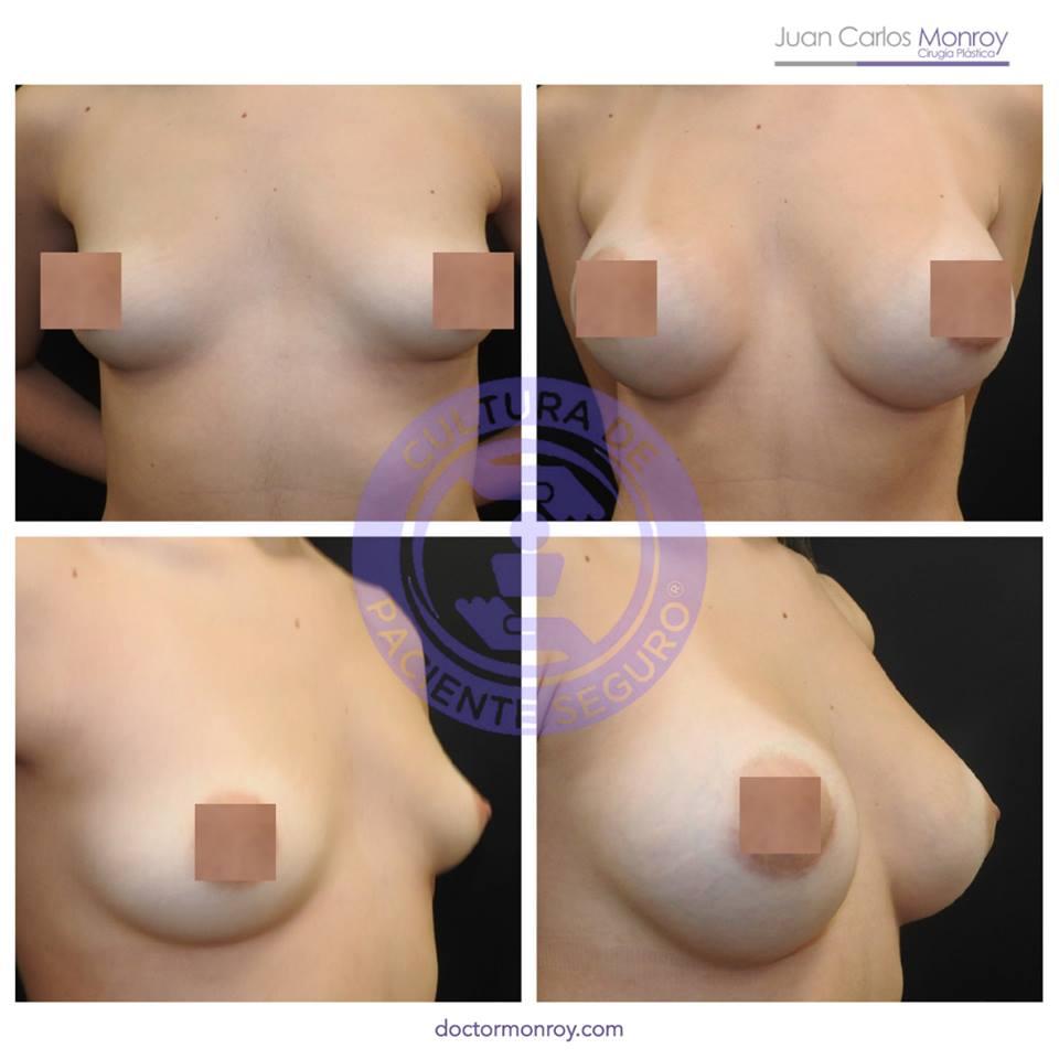 Postoperatorio y preoperatorio mamoplastia de aumento