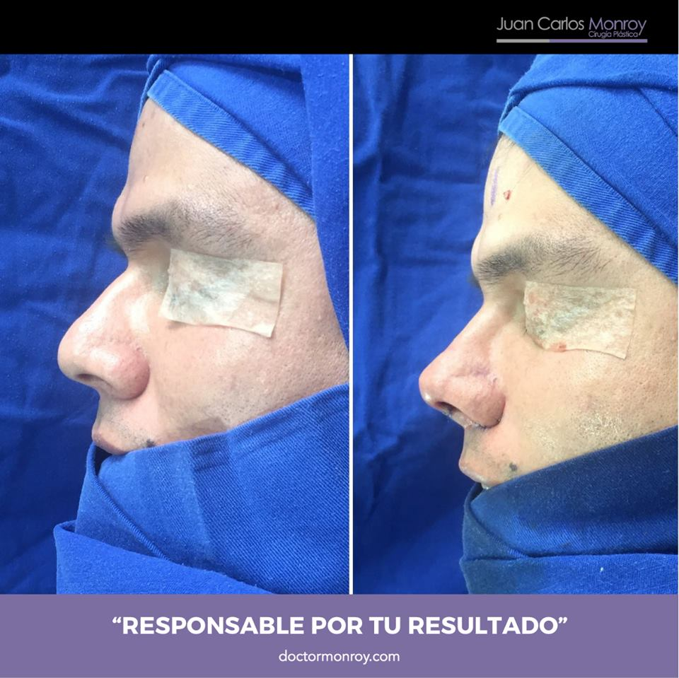 Rinoplastia Funcional Másculina